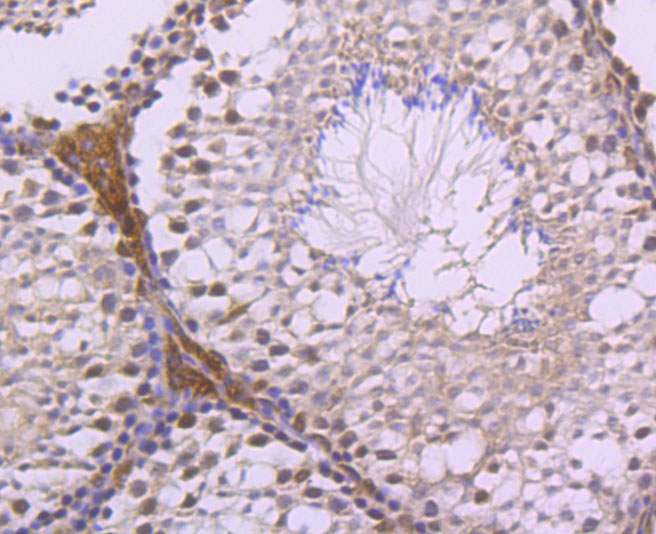 Immunohistochemical analysis of paraffin-embedded human spleen tissue using anti-LXR alpha antibody. Counter stained with hematoxylin.