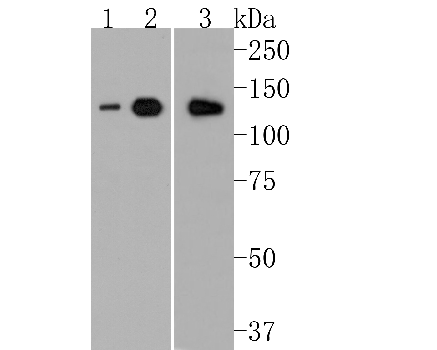 Western blot analysis of ULK1 on different lysates. Proteins were transferred to a PVDF membrane and blocked with 5% BSA in PBS for 1 hour at room temperature. The primary antibody (ET1704-63, 1/500) was used in 5% BSA at room temperature for 2 hours. Goat Anti-Rabbit IgG - HRP Secondary Antibody (HA1001) at 1:5,000 dilution was used for 1 hour at room temperature.<br />  Positive control: <br />  Lane 1: SH-SY5Y cell lysate<br />  Lane 2: MCF-7 cell lysate<br />  Lane 3: mouse spleen tissue lysate