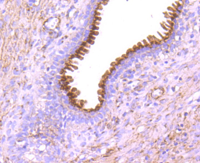 Immunohistochemical analysis of paraffin-embedded human prostate tissue using anti-GOLPH2 antibody. Counter stained with hematoxylin.