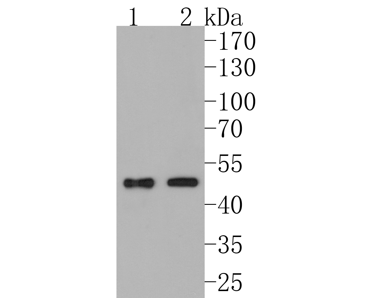 Western blot analysis of PDK1 on different lysates. Proteins were transferred to a PVDF membrane and blocked with 5% BSA in PBS for 1 hour at room temperature. The primary antibody (ET1704-66, 1/500) was used in 5% BSA at room temperature for 2 hours. Goat Anti-Rabbit IgG - HRP Secondary Antibody (HA1001) at 1:5,000 dilution was used for 1 hour at room temperature.<br /> Positive control: <br /> Lane 1: rat heart tissue lysate<br /> Lane 2: mouse heart tissue lysate