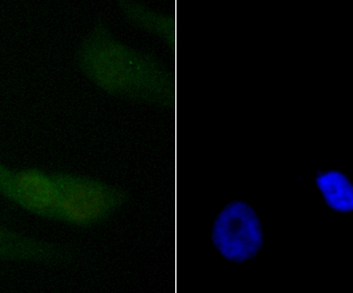 ICC staining PDCD4 in PC-3M cells (green). The nuclear counter stain is DAPI (blue). Cells were fixed in paraformaldehyde, permeabilised with 0.25% Triton X100/PBS.