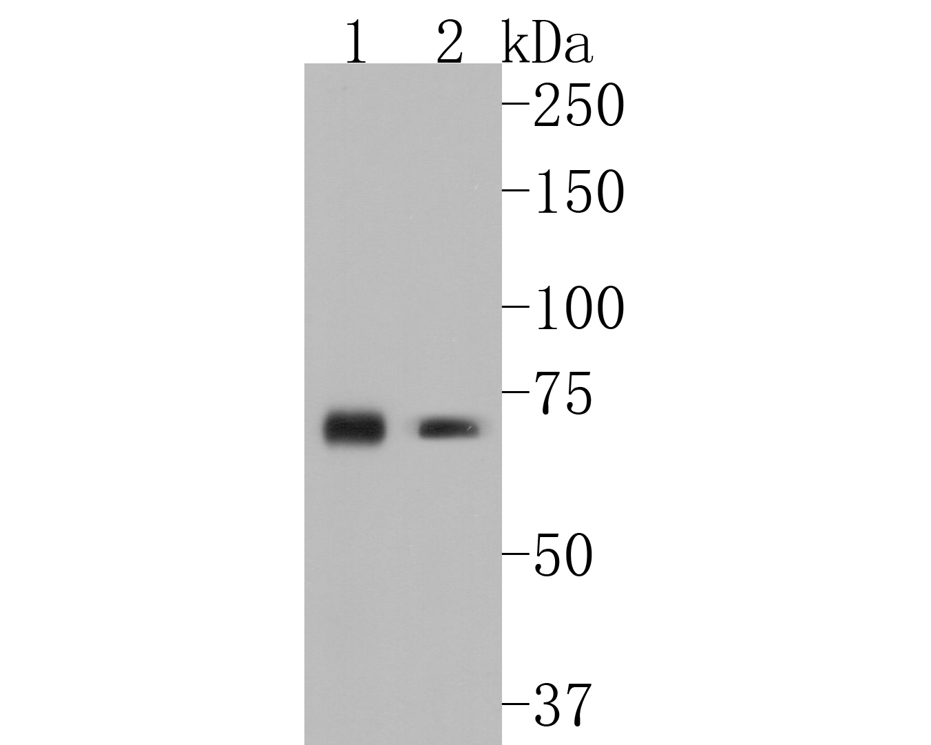 Western blot analysis of CD39 on different lysates. Proteins were transferred to a PVDF membrane and blocked with 5% BSA in PBS for 1 hour at room temperature. The primary antibody (ET1704-74, 1/500) was used in 5% BSA at room temperature for 2 hours. Goat Anti-Rabbit IgG - HRP Secondary Antibody (HA1001) at 1:5,000 dilution was used for 1 hour at room temperature.<br /> Positive control: <br /> Lane 1: mouse heart tissue lysate<br /> Lane 2: mouse spleen tissue lysate