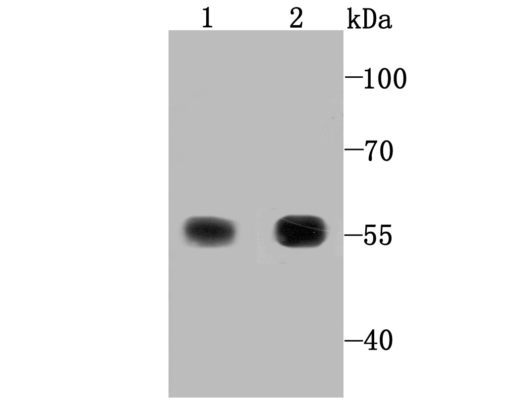 Western blot analysis of TXNRD1 on Hela (1) and human liver tissue lysate (2) using anti-TXNRD1 antibody at 1/1,000 dilution.