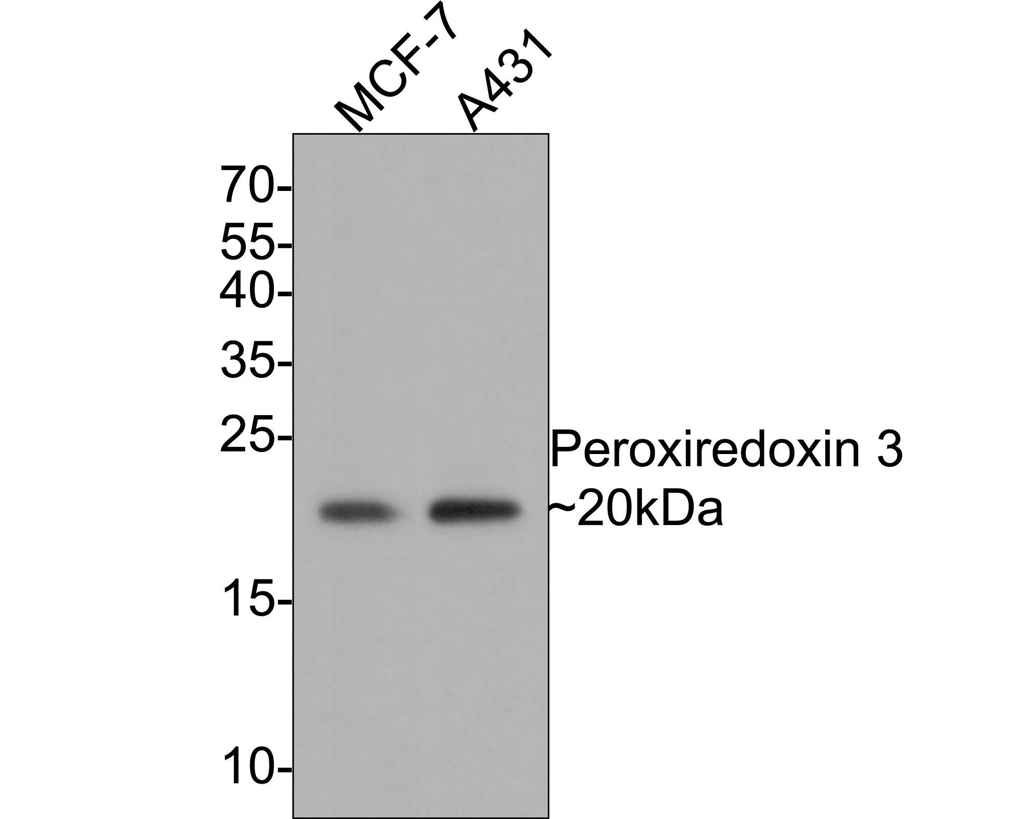 Western blot analysis of Peroxiredoxin 3 on different cell lysate using anti-Peroxiredoxin 3 antibody at 1/1,000 dilution.<br /> Positive control: <br /> Lane 1: Human liver <br /> Lane 2: MCF-7 <br /> Lane 3: A431