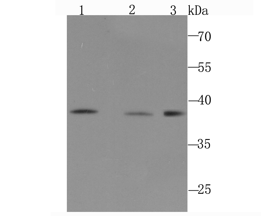 Western blot analysis of DNA Polymerase beta on different cell lysate using anti-DNA Polymerase beta antibody at 1/1,000 dilution.<br />   Positive control:<br />   Lane 1: PC-12 <br />   Lane 2: NIH-3T3 <br />   Lane 3: A431