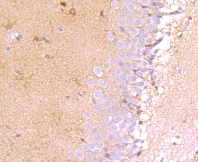 Western blot analysis of MUC4 on PC-3M cell using anti-MUC4 antibody at 1/1,000 dilution.