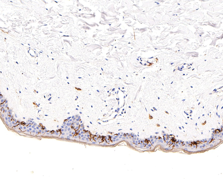 Immunohistochemical analysis of paraffin-embedded human skin tissue using anti-CD1a antibody. The section was pre-treated using heat mediated antigen retrieval with Tris-EDTA buffer (pH 8.0-8.4) for 20 minutes.The tissues were blocked in 5% BSA for 30 minutes at room temperature, washed with ddH2O and PBS, and then probed with the primary antibody (ET1705-17, 1/50) for 30 minutes at room temperature. The detection was performed using an HRP conjugated compact polymer system. DAB was used as the chromogen. Tissues were counterstained with hematoxylin and mounted with DPX.