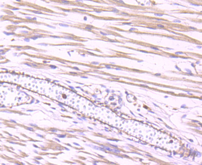 Immunohistochemical analysis of paraffin-embedded human fetal skeletal muscle tissue using anti-Dynamin 2 antibody. Counter stained with hematoxylin.