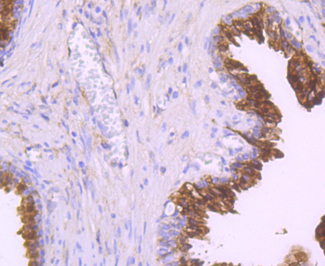 Immunohistochemical analysis of paraffin-embedded human prostate tissue using anti-NDRG1 antibody. Counter stained with hematoxylin.