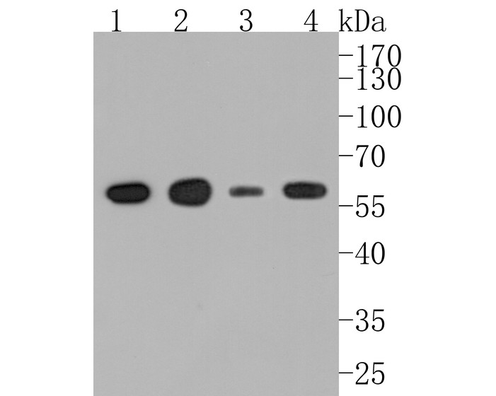 Western blot analysis of alpha Tubulin 4A on different cell lysate using anti-alpha Tubulin 4A antibody at 1/1,000 dilution.<br /> Positive control: <br /> Lane 1: A431 <br /> Lane 2: Rat brain tissue <br /> Lane 3: NIH-3T3 <br /> Lane 4: PC-12