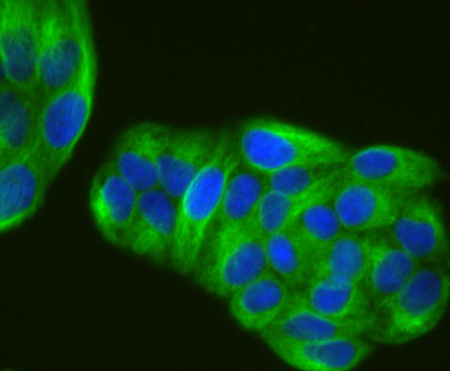 ICC staining alpha Tubulin 4A in Hela cells (green). The nuclear counter stain is DAPI (blue). Cells were fixed in paraformaldehyde, permeabilised with 0.25% Triton X100/PBS.