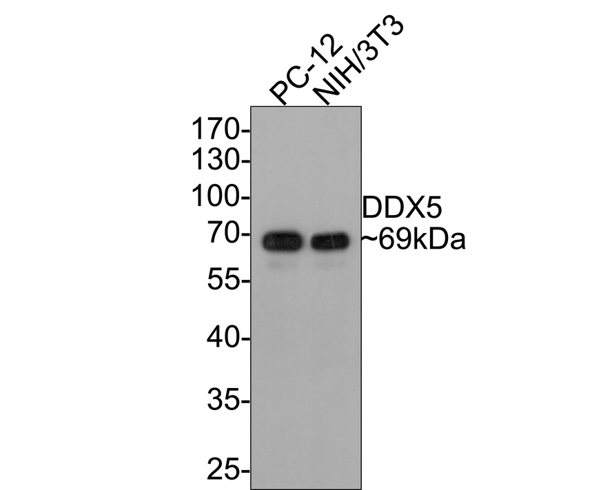 Western blot analysis of DDX5 on different cell lysate using anti-DDX5 antibody at 1/1,000 dilution.<br /> Positive control:<br />  Lane 1: PC-12 <br />  Lane 2: MEF <br />  Lane 3: SH-SY5Y <br />  Lane 4: NIH-3T3 <br />  Lane 5: Mouse brain <br />
