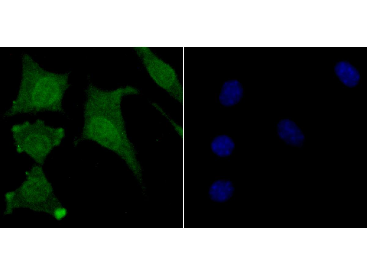 ICC staining USP11 in SH-SY5Y cells (green). The nuclear counter stain is DAPI (blue). Cells were fixed in paraformaldehyde, permeabilised with 0.25% Triton X100/PBS.