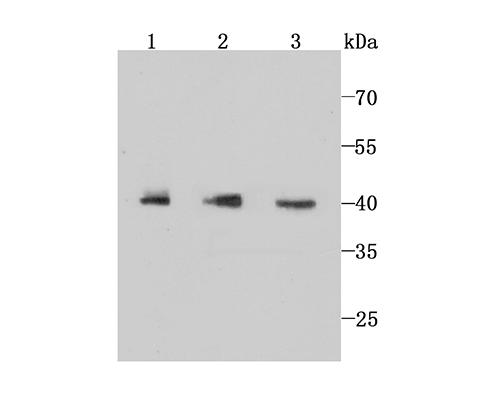 Western blot analysis of IKB epsilon on different cell lysate using anti-IKB epsilon antibody at 1/1,000 dilution.<br />   Positive control:<br />   Line 1: THP-1 Line 2: Jurkat Line 3: Hela