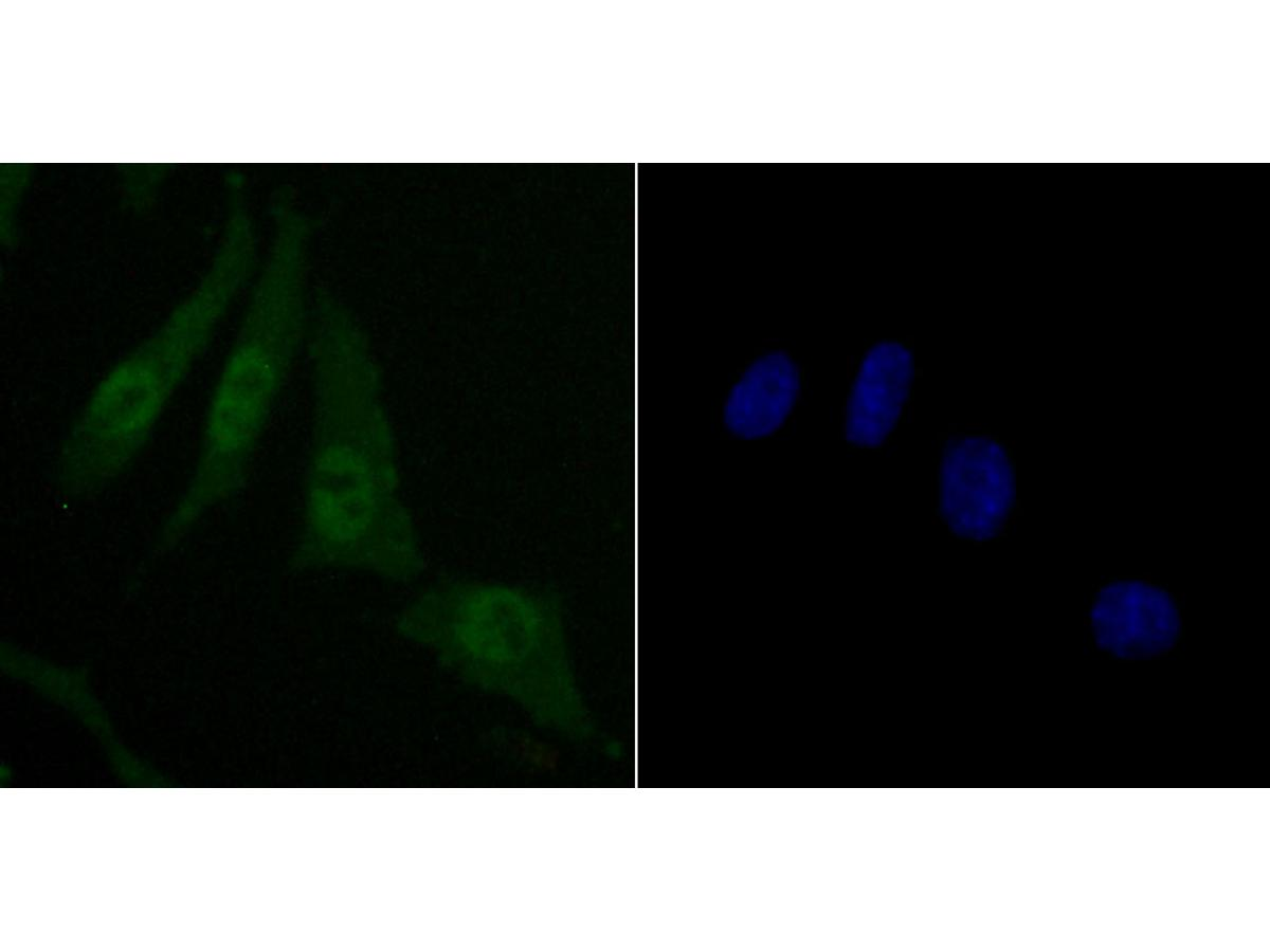 ICC staining of Skp1 in SH-SY5Y cells (green). Formalin fixed cells were permeabilized with 0.1% Triton X-100 in TBS for 10 minutes at room temperature and blocked with 1% Blocker BSA for 15 minutes at room temperature. Cells were probed with the primary antibody (ET1705-43, 1/50) for 1 hour at room temperature, washed with PBS. Alexa Fluor®488 Goat anti-Rabbit IgG was used as the secondary antibody at 1/1,000 dilution. The nuclear counter stain is DAPI (blue).