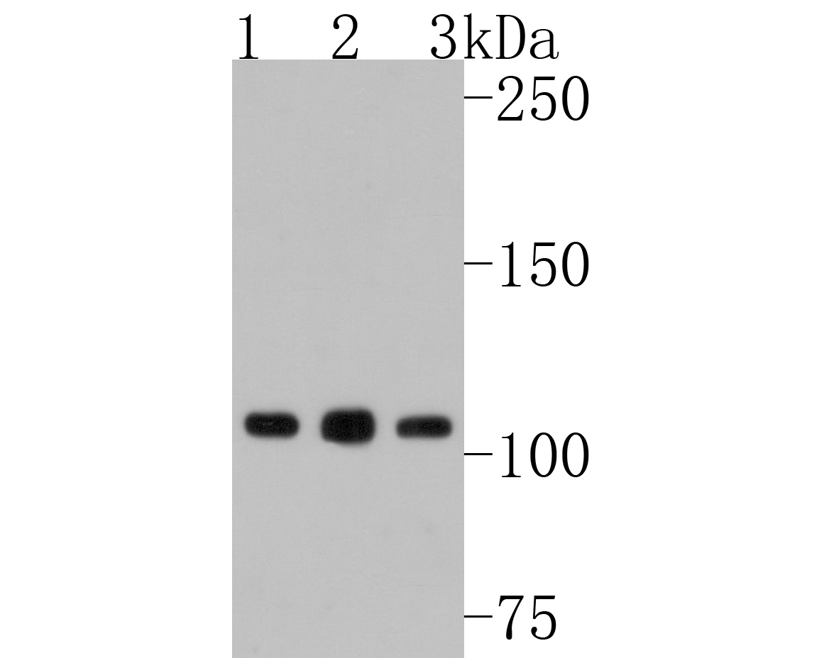 Western blot analysis of NFkB p100 on different lysates. Proteins were transferred to a PVDF membrane and blocked with 5% BSA in PBS for 1 hour at room temperature. The primary antibody (ET1705-45, 1/500) was used in 5% BSA at room temperature for 2 hours. Goat Anti-Rabbit IgG - HRP Secondary Antibody (HA1001) at 1:200,000 dilution was used for 1 hour at room temperature.<br /> Positive control: <br /> Lane 1: Hela cell lysate<br /> Lane 2: Daudi cell lysate<br /> Lane 3: MCF-7 cell lysate
