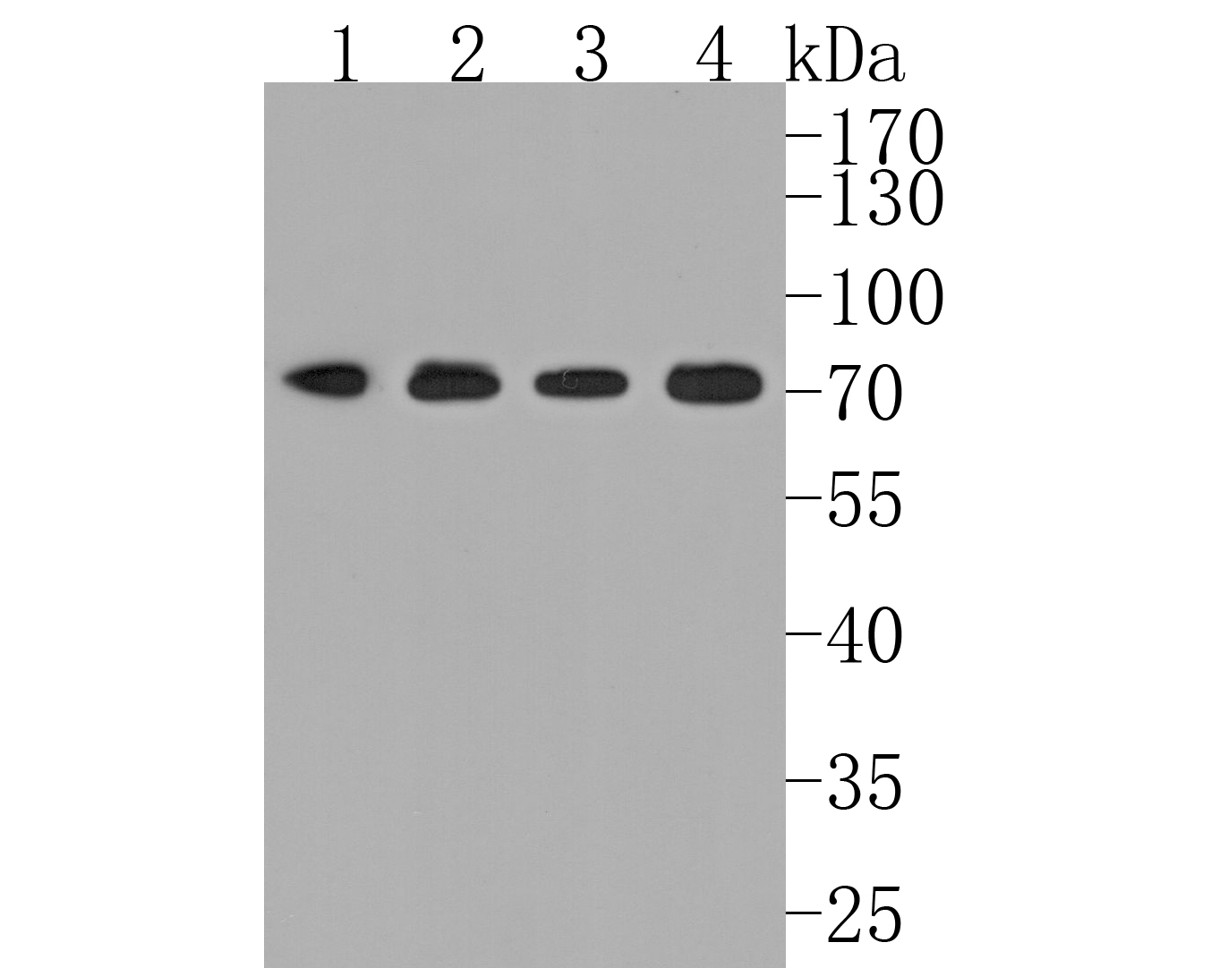 Western blot analysis of BMAL1 on different lysates using anti-BMAL1 antibody at 1/1,000 dilution.<br />  Positive control: <br />   Lane 1: NIH/3T3 <br />   Lane 2: Rat brain <br />   Lane 3: Mouse spleen <br />   Lane 4: Hela