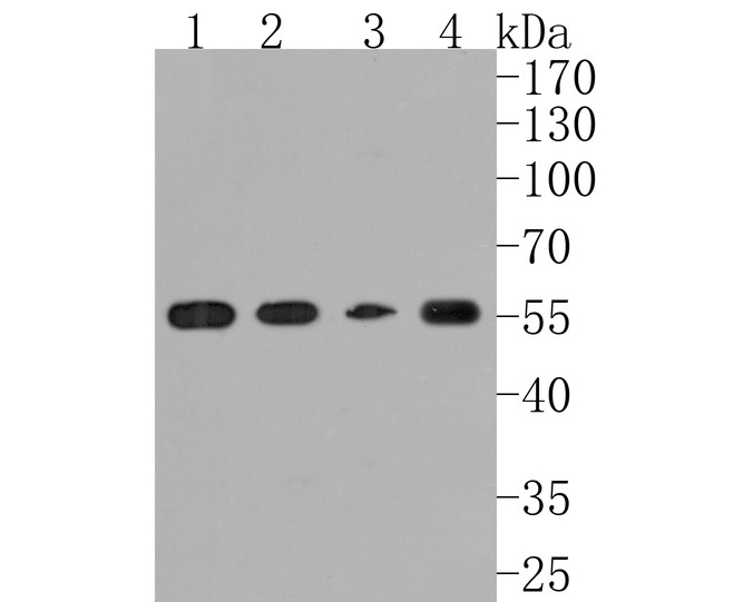 Western blot analysis of Angiopoietin 2 on different lysates. Proteins were transferred to a PVDF membrane and blocked with 5% BSA in PBS for 1 hour at room temperature. The primary antibody (ET1705-6, 1/500) was used in 5% BSA at room temperature for 2 hours. Goat Anti-Rabbit IgG - HRP Secondary Antibody (HA1001) at 1:5,000 dilution was used for 1 hour at room temperature.<br /> Positive control: <br /> Lane 1: TF-1 cell lysate<br /> Lane 2: human liver tissue lysate<br /> Lane 3: human placenta tissue lysate<br /> Lane 4: mouse liver tissue lysate