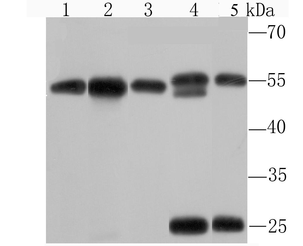 Western blot analysis of KPNA2 on different cell lysates using anti-KPNA2 antibody at 1/1,000 dilution.<br /> Postive control:<br /> Lane 1: Hela<br /> Lane 2: 293T<br /> Lane 3: HepG2<br /> Lane 4: NIH-3T3<br /> Lane 5: PC-12