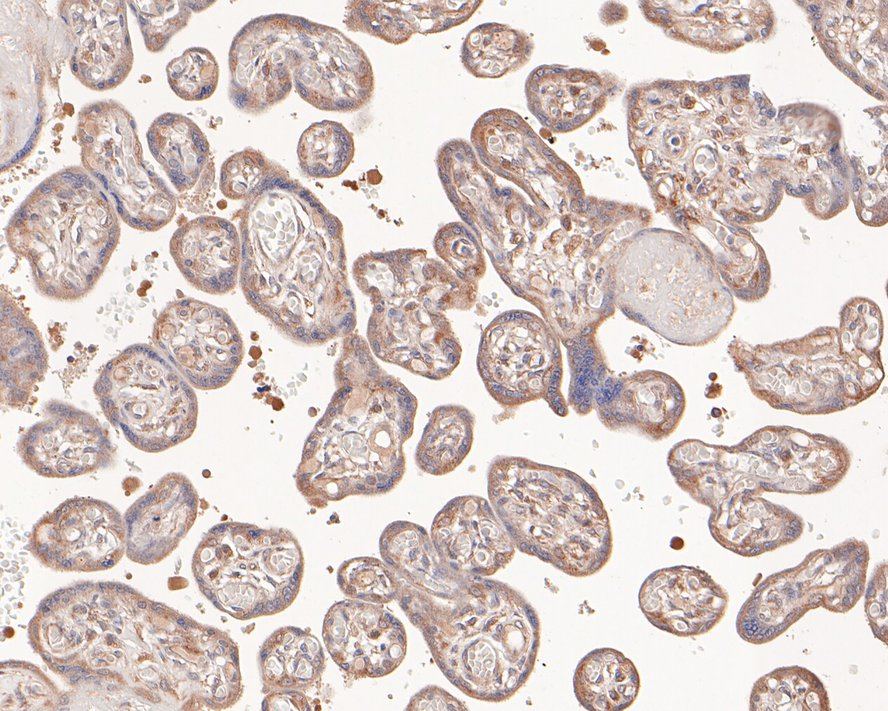 Immunohistochemical analysis of paraffin-embedded human breast carcinoma tissue using anti-RANTES antibody. The section was pre-treated using heat mediated antigen retrieval with Tris-EDTA buffer (pH 8.0-8.4) for 20 minutes.The tissues were blocked in 5% BSA for 30 minutes at room temperature, washed with ddH2O and PBS, and then probed with the primary antibody (ET1705-70, 1/50) for 30 minutes at room temperature. The detection was performed using an HRP conjugated compact polymer system. DAB was used as the chromogen. Tissues were counterstained with hematoxylin and mounted with DPX.