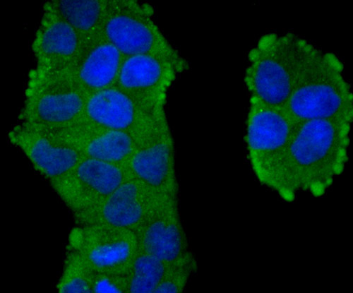 ICC staining of TXNIP in NIH/3T3 cells (green). Formalin fixed cells were permeabilized with 0.1% Triton X-100 in TBS for 10 minutes at room temperature and blocked with 1% Blocker BSA for 15 minutes at room temperature. Cells were probed with the primary antibody (ET1705-72, 1/50) for 1 hour at room temperature, washed with PBS. Alexa Fluor®488 Goat anti-Rabbit IgG was used as the secondary antibody at 1/1,000 dilution. The nuclear counter stain is DAPI (blue).