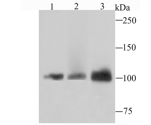 Western blot analysis of DNA Ligase IV on Hela cell using anti-DNA Ligase IV antibody at 1/1,000 dilution.<br />   Positive control:<br />   Lane 1: HepG2  Lane 2: Hela  Lane 3: Jurkat