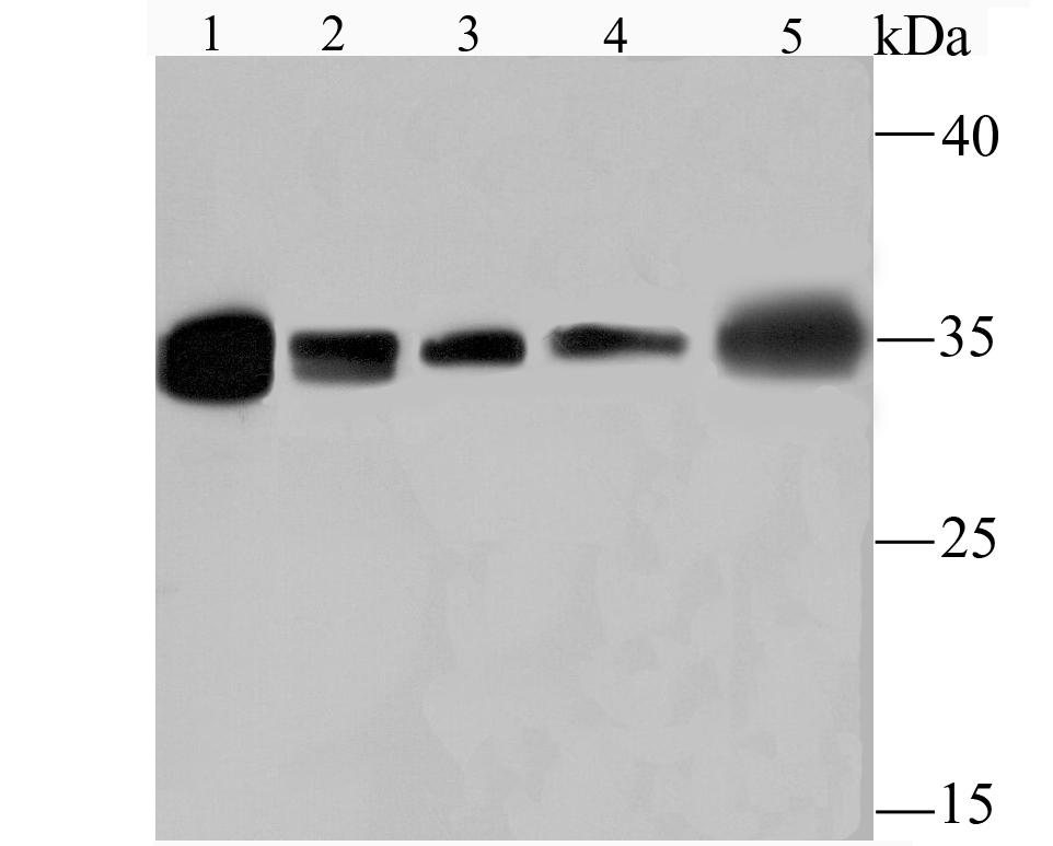 Western blot analysis of HuR/ELAVL1 on different lysates using anti-HuR/ELAVL1 antibody at 1/1,000 dilution.<br />  Positive control:<br />  Lane 1: Rat spleen tissue<br />  Lane 2: Rat heart tisse<br />  Lane 3: PC-12<br />  Lane 4: Mouse heart tissue<br />  Lane 5: Hela