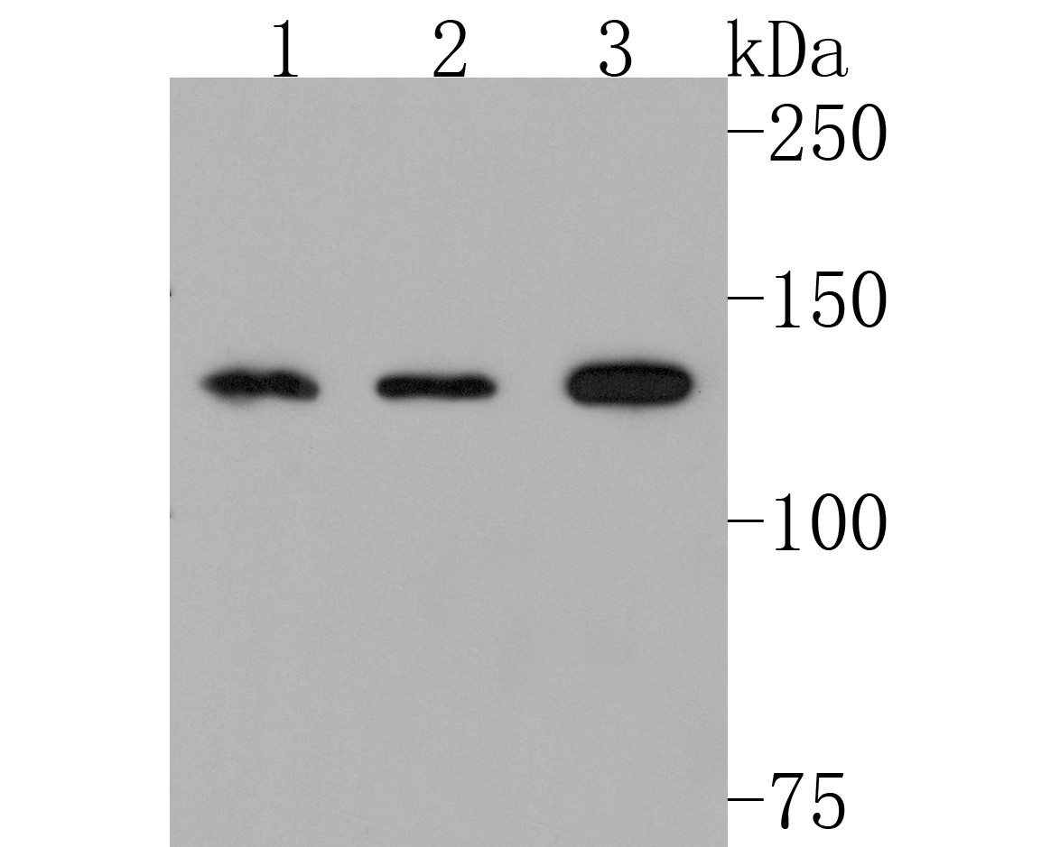 Western blot analysis of JAK1 on Hela cell using anti-JAK1 antibody at 1/1,000 dilution.<br /> Positive control:<br /> Lane 1: PC-12<br /> Lane 2: Jurkat<br /> Lane 3: NIH-3T3