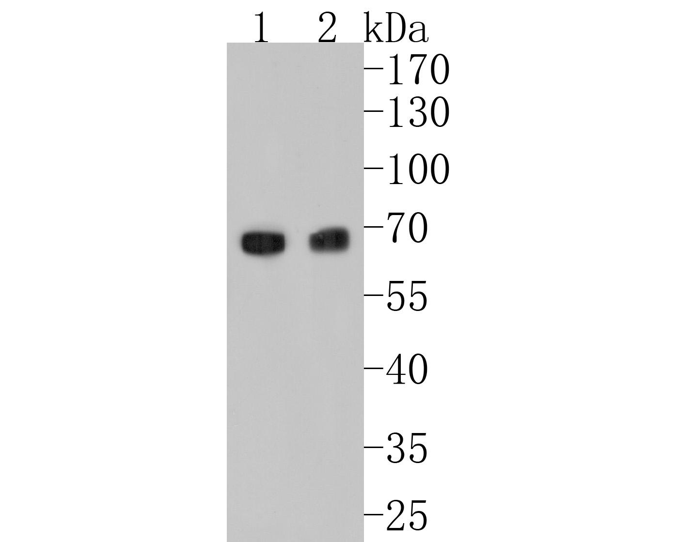 Western blot analysis of Klotho on human serum lysate using anti-Klotho antibody at 1/1,000 dilution.