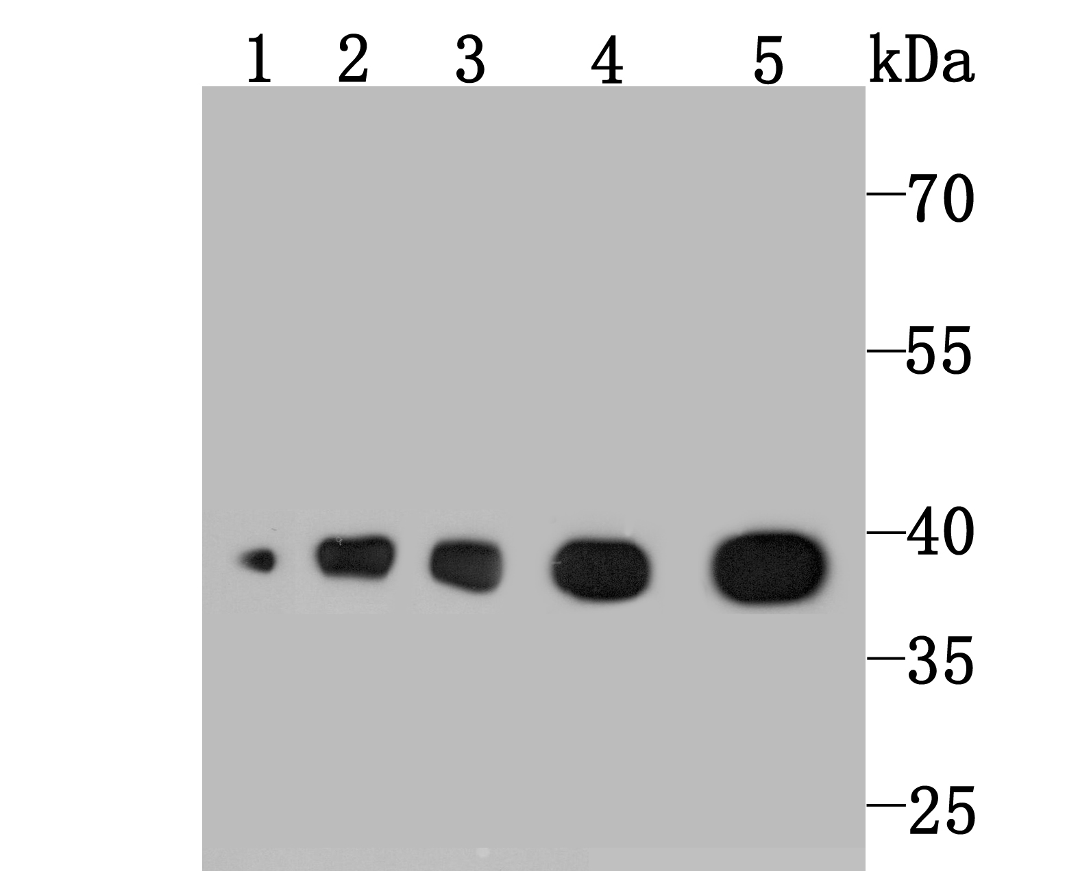 Western blot analysis of Aldolase on different lysates using anti-Aldolase antibody at 1/1,000 dilution.<br />   Positive control:<br />   Lane 1: A549 <br />   Lane 2: Hela <br />   Lane 3: Mouse liver <br />   Lane 4: Rat liver<br />   Lane 5: Rat spleen