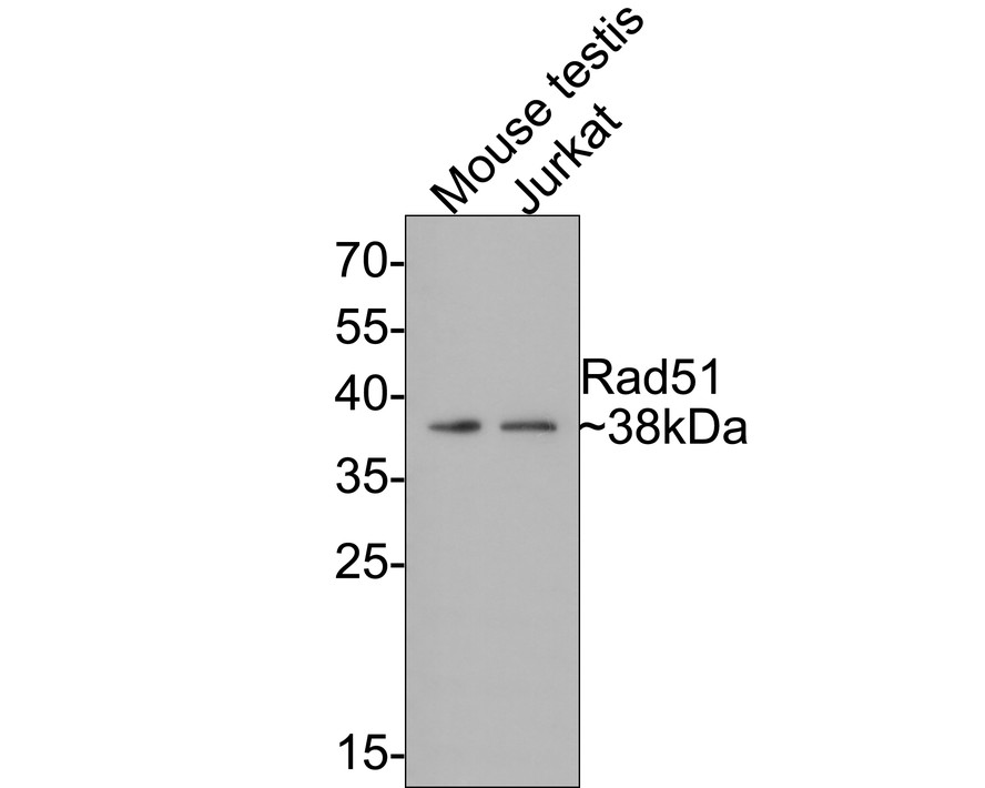 Western blot analysis of Rad51 on different lysates. Proteins were transferred to a PVDF membrane and blocked with 5% BSA in PBS for 1 hour at room temperature. The primary antibody (ET1705-96, 1/500) was used in 5% BSA at room temperature for 2 hours. Goat Anti-Rabbit IgG - HRP Secondary Antibody (HA1001) at 1:200,000 dilution was used for 1 hour at room temperature.<br /> Positive control: <br /> Lane 1: Mouse testis tissue lysate<br /> Lane 2: Jurkat cell lysate