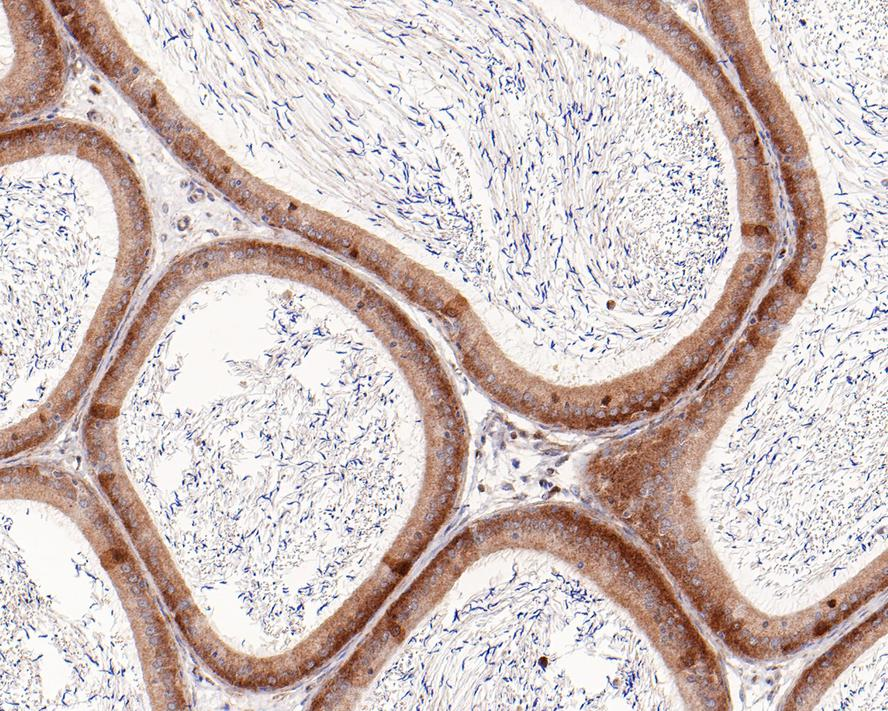 Immunohistochemical analysis of paraffin-embedded rat epididymis tissue using anti-Rad51 antibody. The section was pre-treated using heat mediated antigen retrieval with Tris-EDTA buffer (pH 8.0-8.4) for 20 minutes.The tissues were blocked in 5% BSA for 30 minutes at room temperature, washed with ddH2O and PBS, and then probed with the primary antibody (ET1705-96, 1/50) for 30 minutes at room temperature. The detection was performed using an HRP conjugated compact polymer system. DAB was used as the chromogen. Tissues were counterstained with hematoxylin and mounted with DPX.