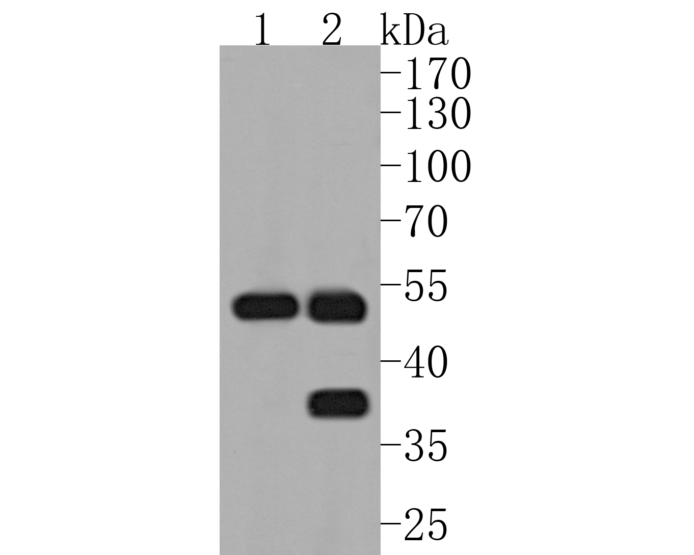 Western blot analysis of MMP3 on different lysates. Proteins were transferred to a PVDF membrane and blocked with 5% BSA in PBS for 1 hour at room temperature. The primary antibody (ET1705-98, 1/500) was used in 5% BSA at room temperature for 2 hours. Goat Anti-Rabbit IgG - HRP Secondary Antibody (HA1001) at 1:5,000 dilution was used for 1 hour at room temperature.<br /> Positive control: <br /> Lane 1: human liver tissue lysate<br /> Lane 2: rat liver tissue lysate