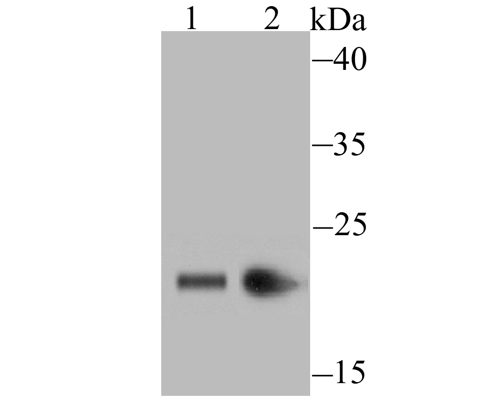 Western blot analysis of HP1 gamma on PC-12 (1) and MCF-7 (2) cell lysate using anti-HP1 gamma antibody at 1/500 dilution.