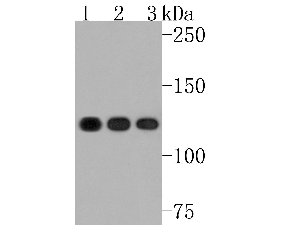 Western blot analysis of Eg5 on different cell lysates using anti-Eg5 antibody at 1/500 dilution.<br />   Positive control:<br />   Lane 1: 293<br />   Lane 2: A431<br />   Lane 3: Jurkat