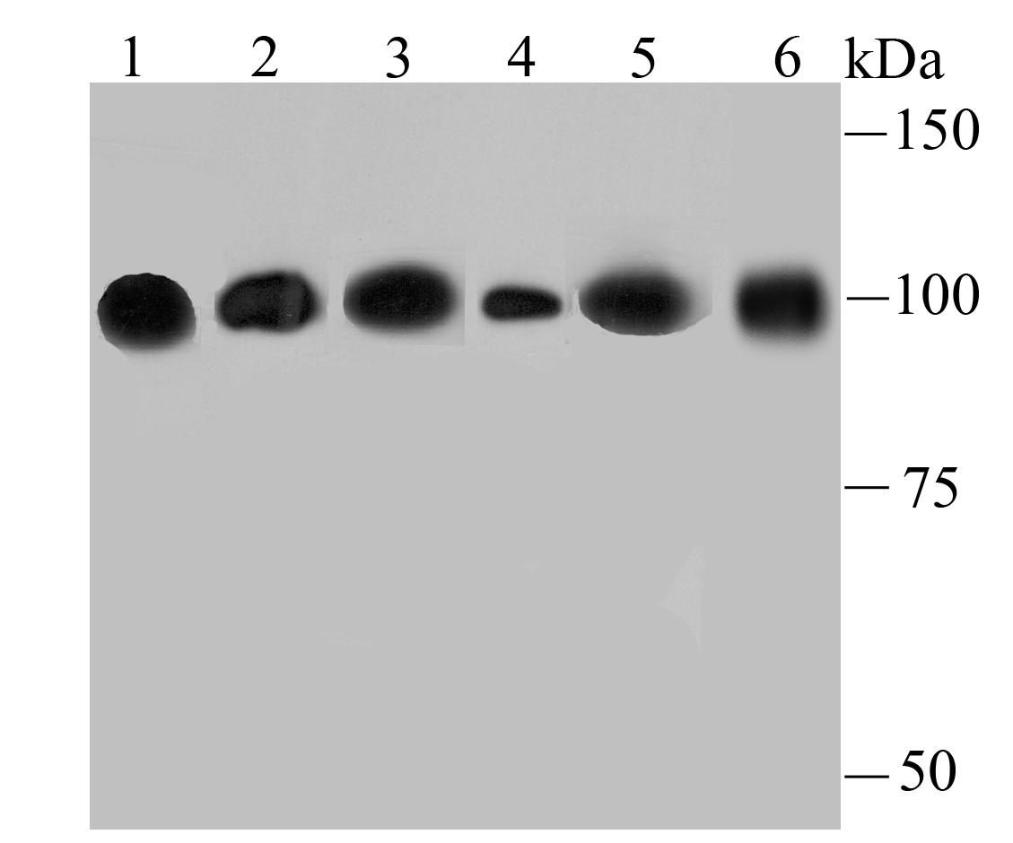 Western blot analysis of alpha Actinin 4 on different lysates using anti-alpha Actinin 4 antibody at 1/500 dilution.<br />  Positive control:<br />  Lane 1: Hela<br />       Lane 2: PC-12<br />  Lane 3: NIH-3T3<br />    Lane 4: Rat liver tissue<br />  Lane 5: A431 <br />      Lane 6: HepG2