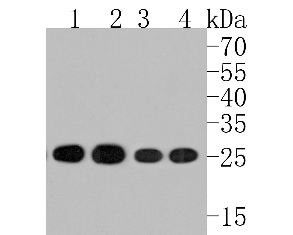 Western blot analysis of HPRT on different lysates. Proteins were transferred to a PVDF membrane and blocked with 5% BSA in PBS for 1 hour at room temperature. The primary antibody (ET1706-08, 1/500) was used in 5% BSA at room temperature for 2 hours. Goat Anti-Rabbit IgG - HRP Secondary Antibody (HA1001) at 1:5,000 dilution was used for 1 hour at room temperature.<br /> Positive control: <br /> Lane 2: MCF-7 cell lysate<br /> Lane 2: 293 cell lysate<br /> Lane 2: Hela cell lysate<br /> Lane 2: A431 cell lysate
