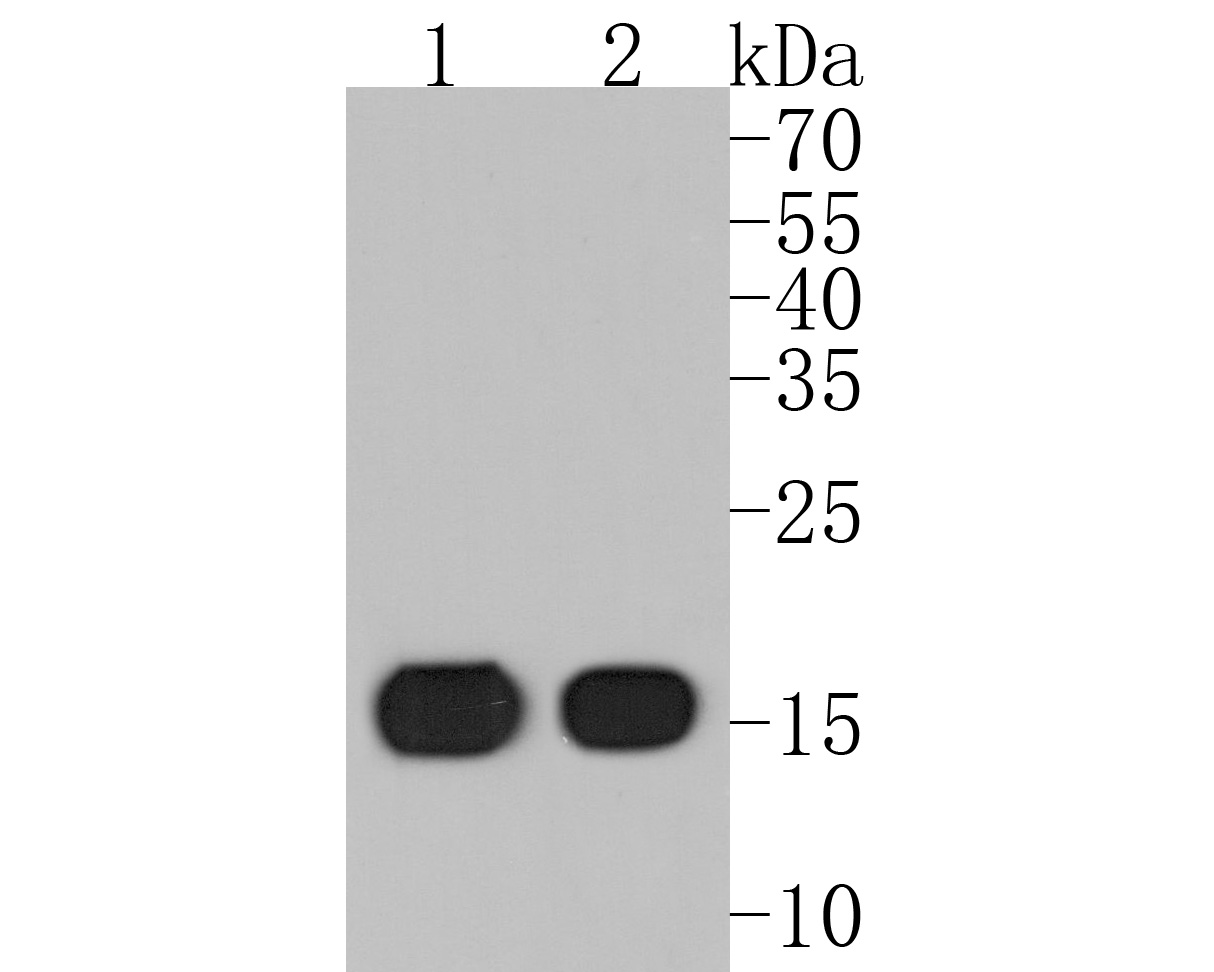 Western blot analysis of Fragilis on different cell lysates using anti-Fragilis antibody at 1/500 dilution.<br />  Positive control:<br />   Lane 1: Hela<br />   Lane 2: HepG2<br />   Lane 3: Hela