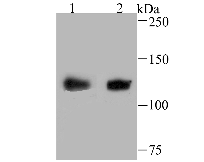 Western blot analysis of USP10 on SiHa (1) and A549 (2) cell lysate using anti-USP10 antibody at 1/500 dilution.