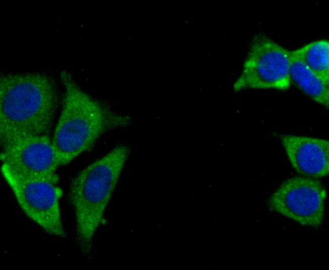 ICC staining USP10 in MCF-7 cells (green). The nuclear counter stain is DAPI (blue). Cells were fixed in paraformaldehyde, permeabilised with 0.25% Triton X100/PBS.