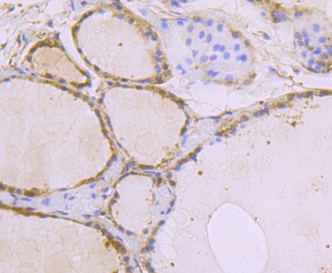 Immunohistochemical analysis of paraffin-embedded human thyroid grand tissue using anti-USP10 antibody. Counter stained with hematoxylin.