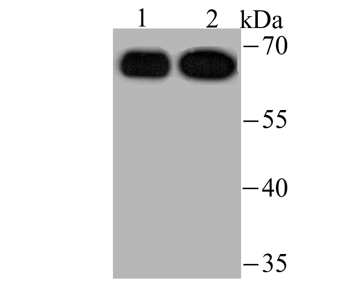 Western blot analysis of USP22 on Hela (1) and HepG2 (2) cell lysate using anti-USP22 antibody at 1/500 dilution.