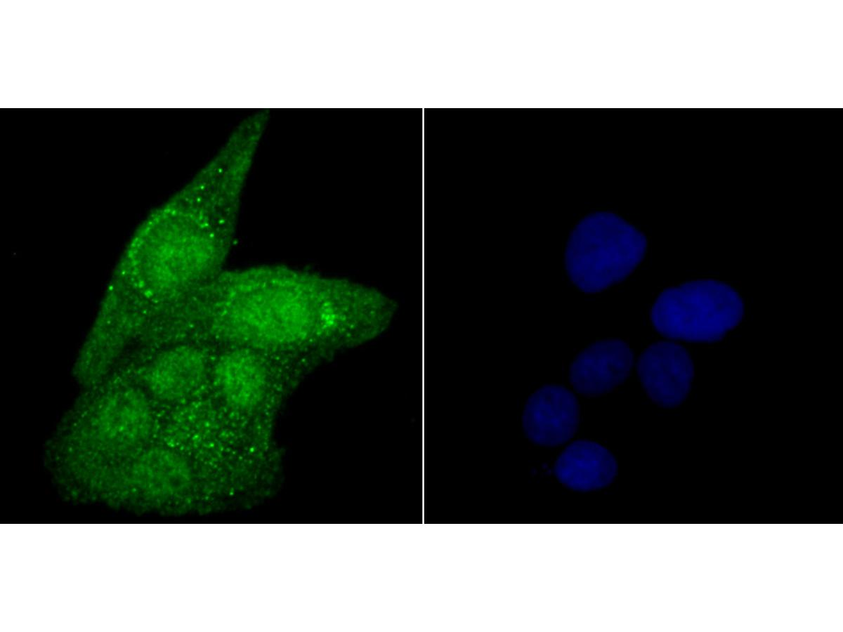 ICC staining USP22 in Hela cells (green). The nuclear counter stain is DAPI (blue). Cells were fixed in paraformaldehyde, permeabilised with 0.25% Triton X100/PBS.