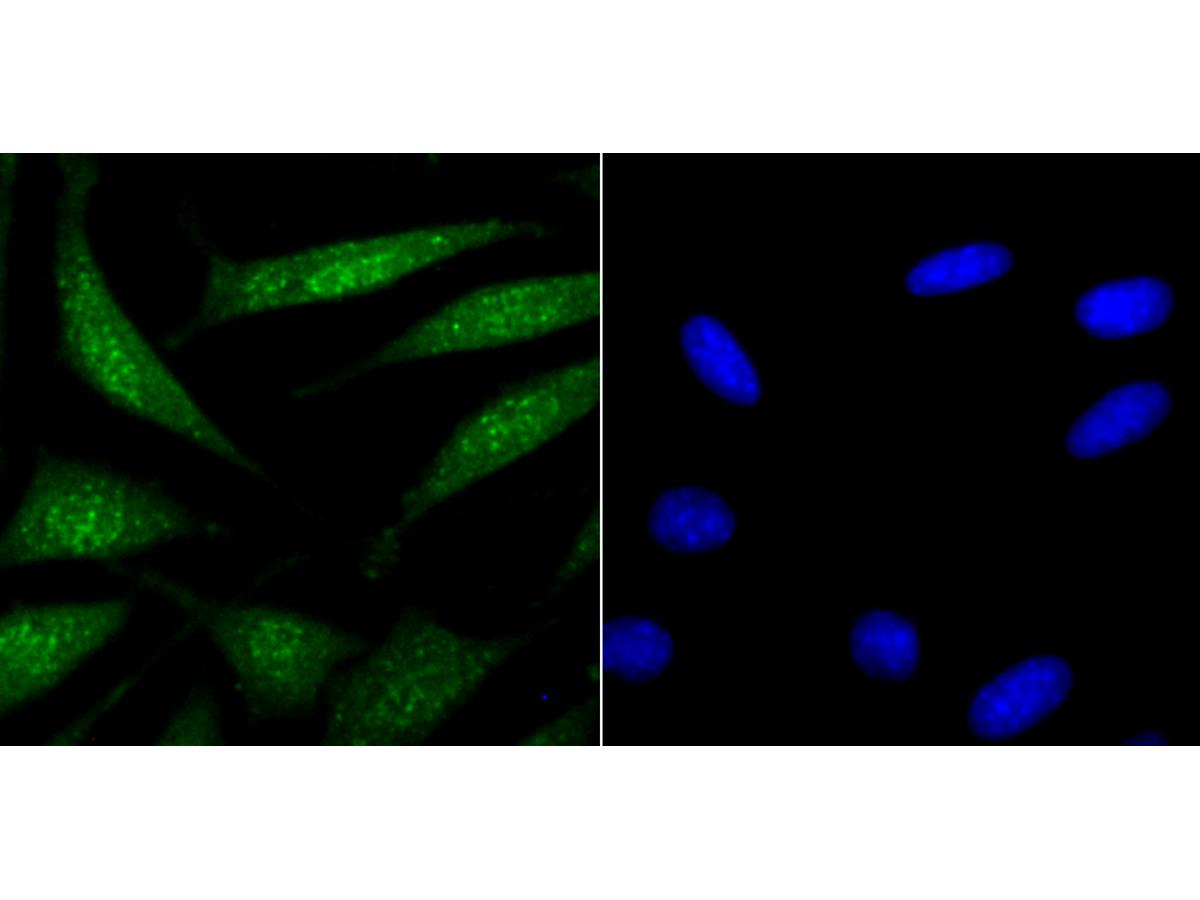 ICC staining USP22 in SH-SY5Y cells (green). The nuclear counter stain is DAPI (blue). Cells were fixed in paraformaldehyde, permeabilised with 0.25% Triton X100/PBS.