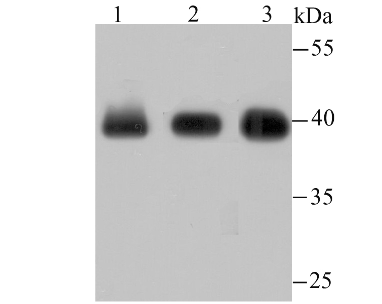Western blot analysis of macroH2A.1 on different lysates using anti-macroH2A.1 antibody at 1/500 dilution.<br />  Positive control:<br />   Lane 1: Hela<br />   Lane 2: Mouse placenta tissue<br />   Lane 3: MCF-7