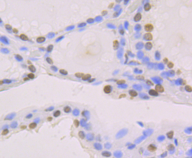 Immunohistochemical analysis of paraffin-embedded human thyroid gland tissue using anti-macroH2A.1 antibody. Counter stained with hematoxylin.