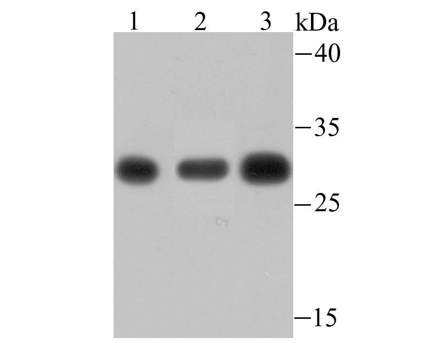 Western blot analysis of PSMA1 on different lysates using anti-PSMA1 antibody at 1/500 dilution.<br /> Positive control:<br />  Lane 1: PC-12<br />  Lane 2: Mouse spleen tissue<br />  Lane 3: Rat spleen tissue<br />