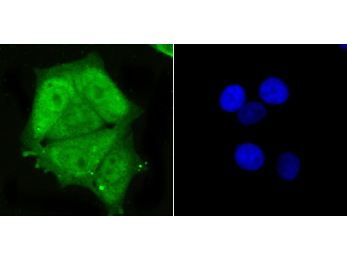 ICC staining PSMA1 in MCF-7 cells (green). The nuclear counter stain is DAPI (blue). Cells were fixed in paraformaldehyde, permeabilised with 0.25% Triton X100/PBS.