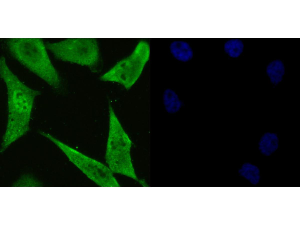 ICC staining of PSMA1 in PC-3M cells (green). Formalin fixed cells were permeabilized with 0.1% Triton X-100 in TBS for 10 minutes at room temperature and blocked with 1% Blocker BSA for 15 minutes at room temperature. Cells were probed with the primary antibody (ET1706-19, 1/50) for 1 hour at room temperature, washed with PBS. Alexa Fluor®488 Goat anti-Rabbit IgG was used as the secondary antibody at 1/1,000 dilution. The nuclear counter stain is DAPI (blue).