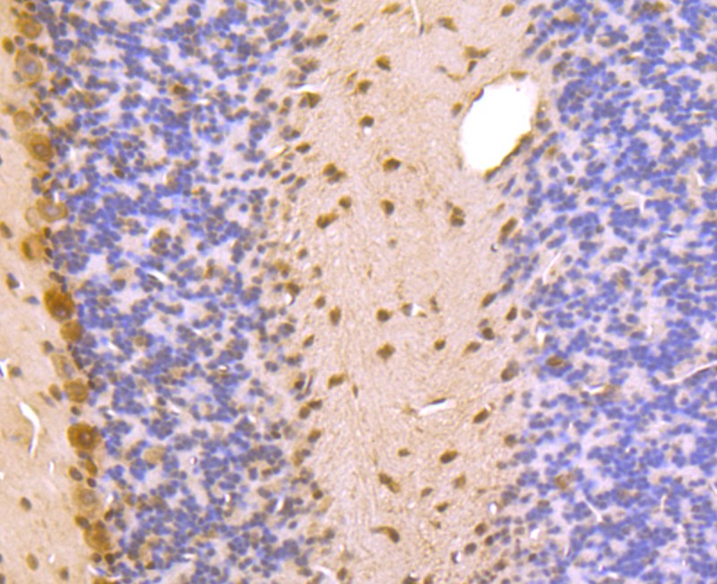 ICC staining PSMA1 in PC-3M cells (green). The nuclear counter stain is DAPI (blue). Cells were fixed in paraformaldehyde, permeabilised with 0.25% Triton X100/PBS.